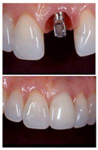 ImplantCrowns
